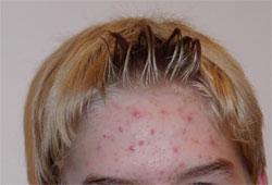 Puistjes op het voorhoofd kunnen vaak verergeren door het gebruik van haarstyling-producten
