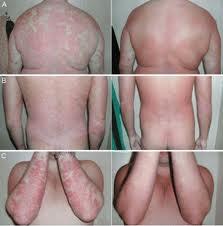 Psoriasis voor na foto